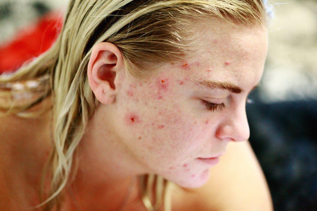 acnee